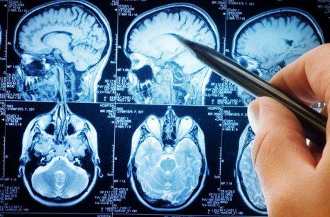 brain-scan-759x500